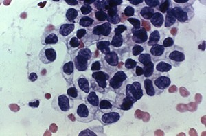 This photomicrograph shows cancerous cells detected by a Pap test. THE CANADIAN PRESS/HO - CDC, A. Elizabeth Plott, C.T. (ASCP)